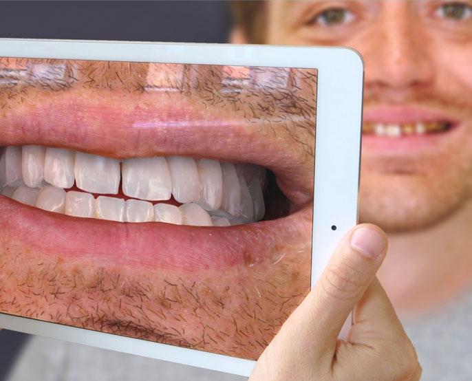 Dijital Gülüş Tasarımı - Sanal Ayna